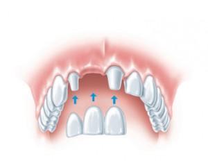 S-tooth-con-a